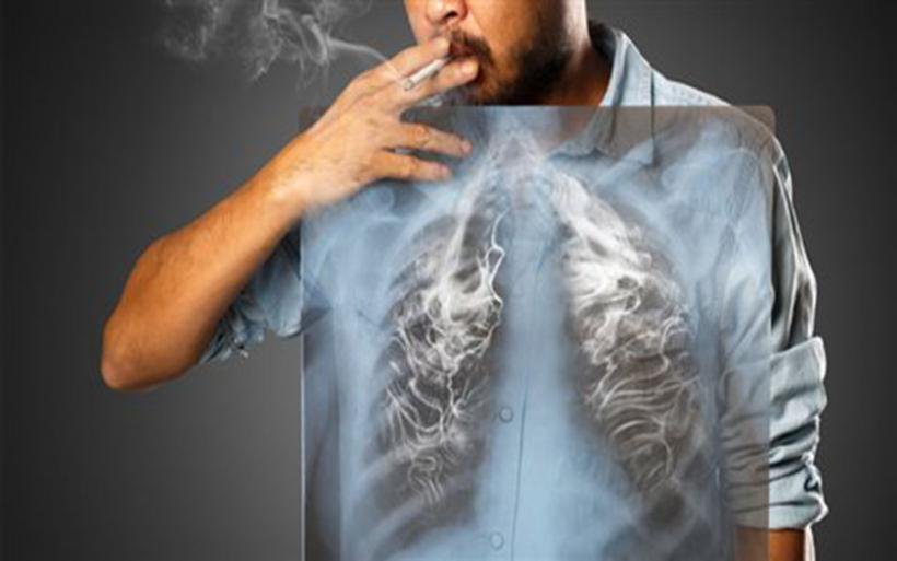 Τροφές βοηθούν την ανάπλαση των πνευμόνων των πρώην καπνιστών