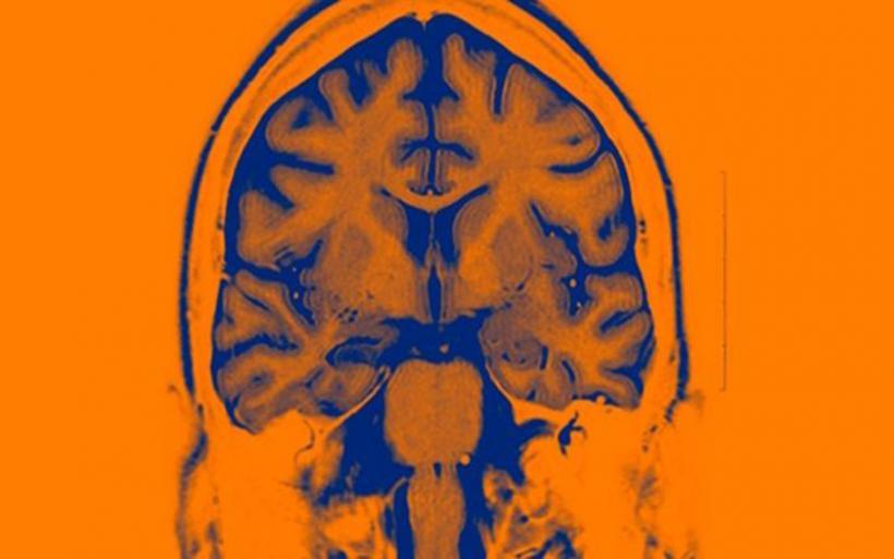 Υπό κλινική δοκιμή τα πρώτα εγκεφαλικά εμφυτεύματα τεχνητής νοημοσύνης
