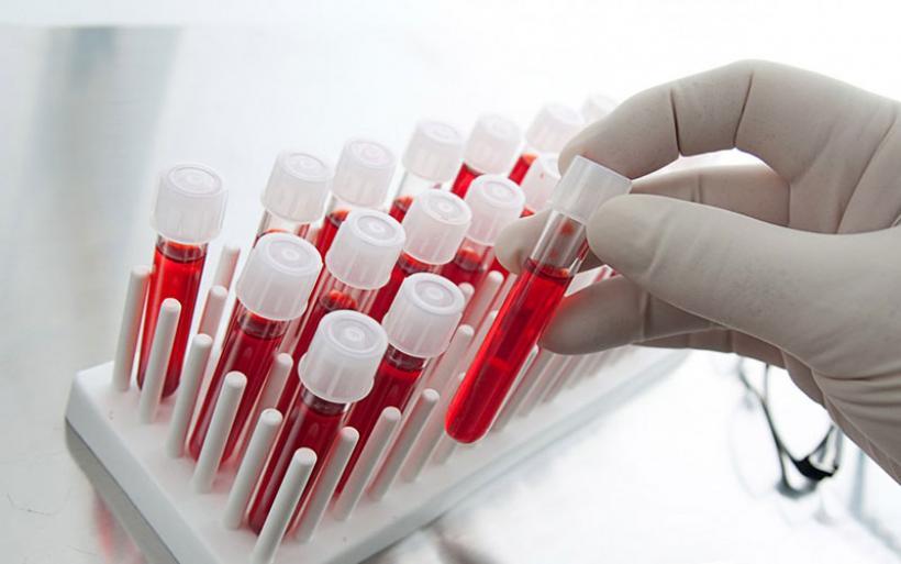 Κύτταρα του ανθρώπινου αίματος μετατράπηκαν σε νευρώνες