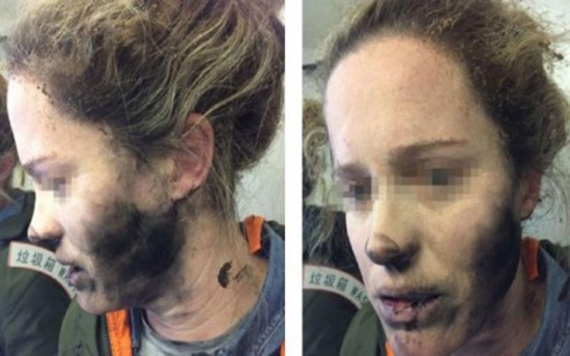 Απίστευτο ατύχημα σε πτήση: Έκρηξη ακουστικών στο πρόσωπο γυναίκας