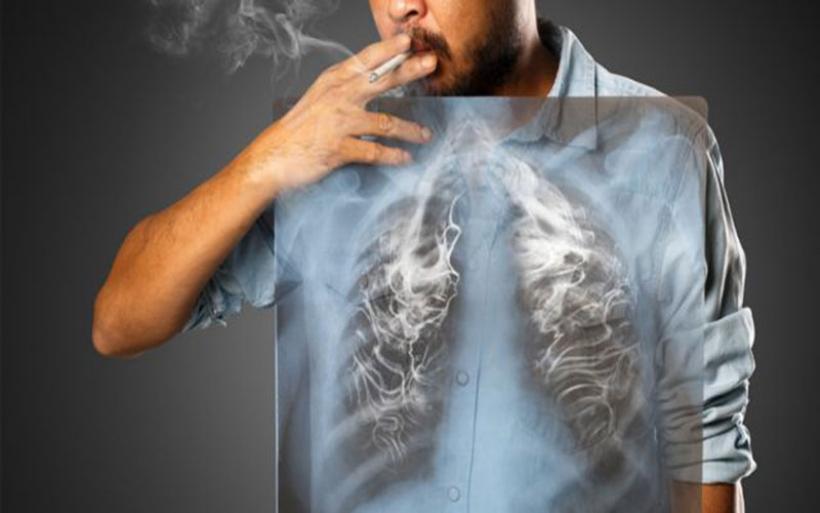 Τσιγάρο : Οι συνέπειες του καπνίσματος στην υγεία