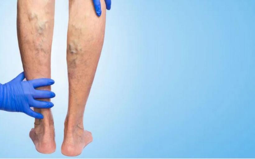 Ποιοι κίνδυνοι συνδέονται με την εμφάνιση κιρσών στα πόδια;