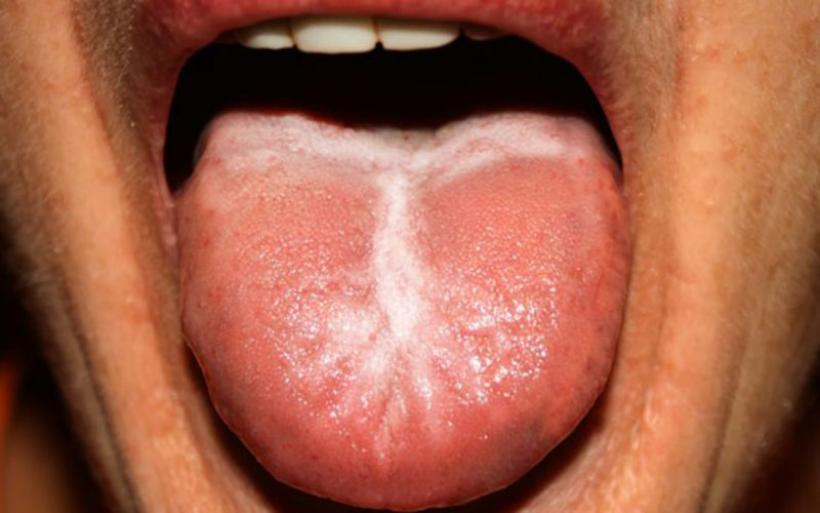 Λευκή γλώσσα: Γιατί συμβαίνει – Πότε είναι ανησυχητικό