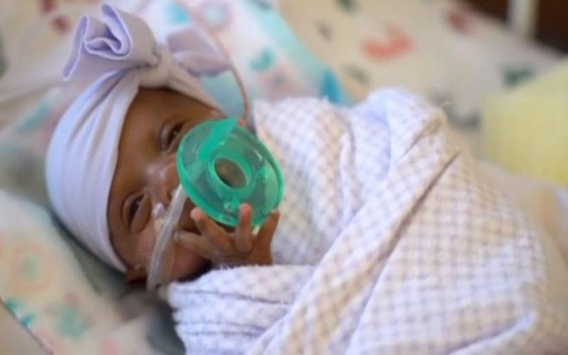 ΗΠΑ: Το μικρότερο μωρό στον κόσμο - Γεννήθηκε μόλις 245 γραμμάρια