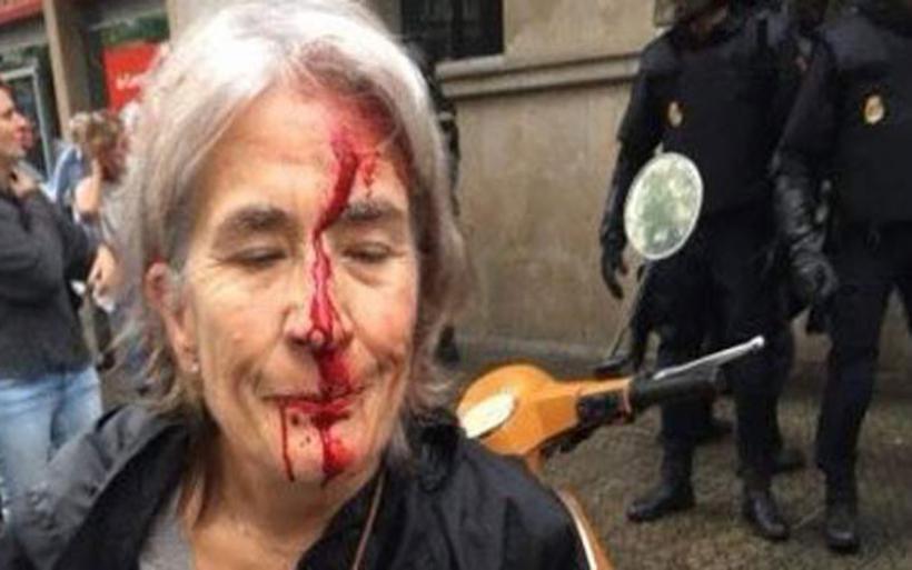 Καταλανοί ψηφοφόροι αιμόφυρτοι μετά τις συγκρούσεις με την αστυνομία