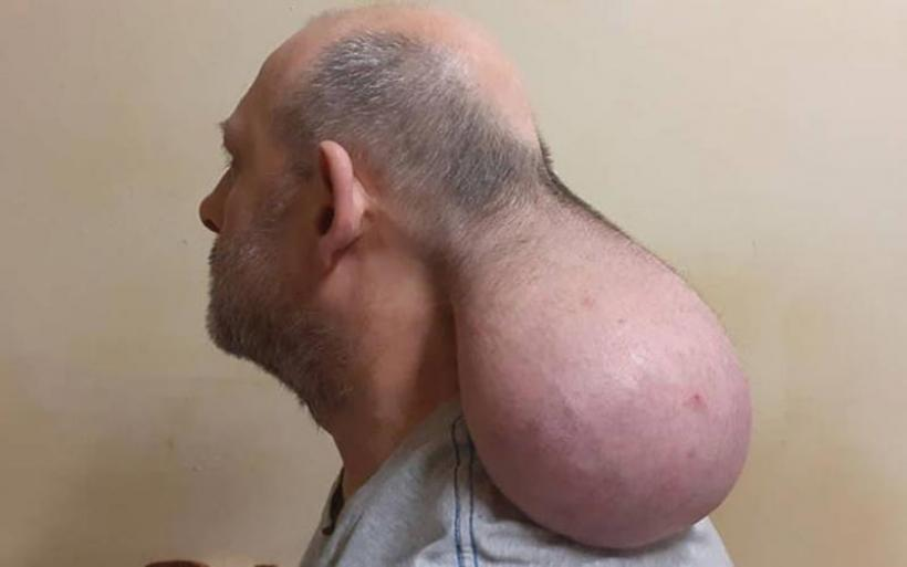 Κρατούμενος στις φυλακές Νιγρίτας Σερρών έχει όγκο που μοιάζει με δεύτερο κεφάλι