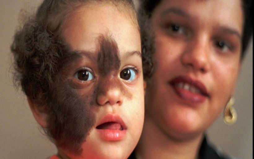 Ανησυχία για το «σύνδρομο λυκανθρώπου» στην Ισπανία: 17 βρέφη με συμπτώματα λόγω λάθος φαρμάκου