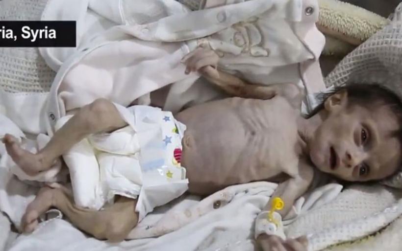 Πολύ σκληρές εικόνες: Μωρό ενός μηνός πεθαίνει από την πείνα στη Συρία