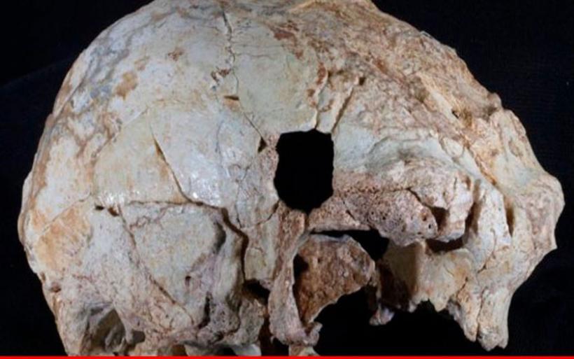 Πορτογαλία: Ανακαλύφθηκε προανθρώπινο κρανίο 400.000 ετών