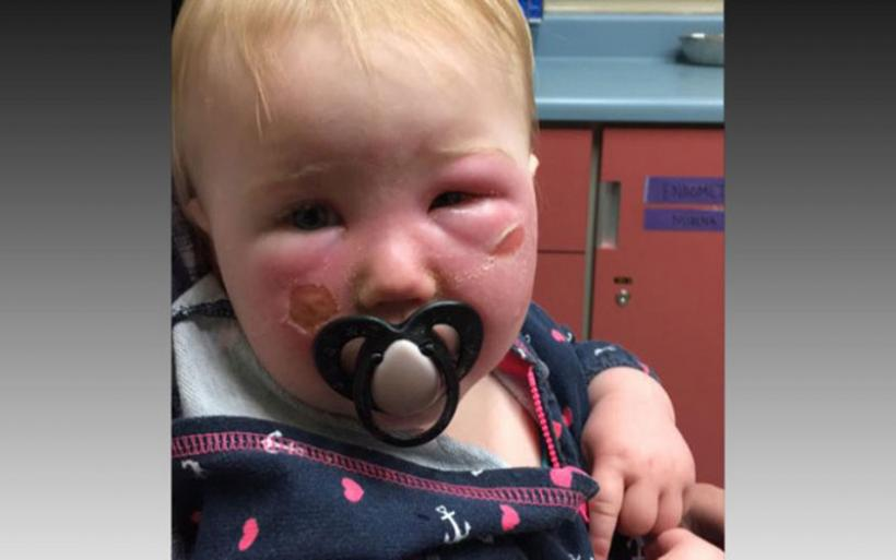Αντηλιακό «για παιδιά» προκάλεσε αυτό σε μωρό 1 έτους – Τι να προσέχετε πάντα